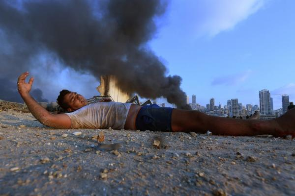 A wounded boy lies on the ground amid debris as smoke billows in the background after a massive explosion that hit the Beirut port. – AFP pic, August 6, 2020.